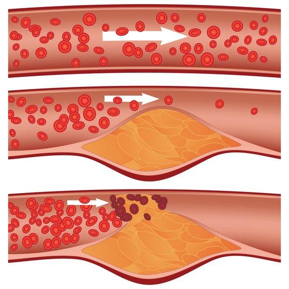 Holesterol krvni sistem