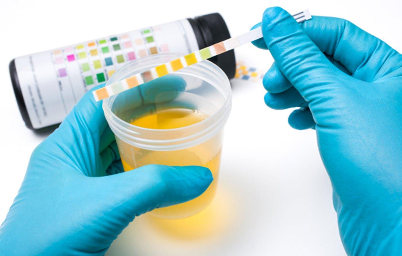Urinokultura i urin